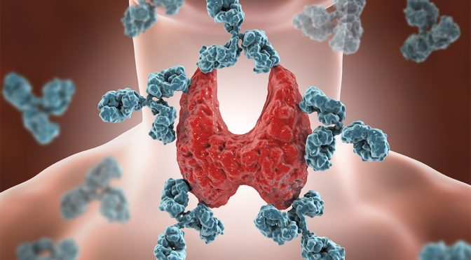 Information for Parents – Acquired Hypothyroidism/Hashimoto's thyroiditis in Children